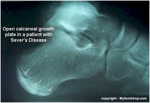 Growth Plate Injuries in the Young Teenage Foot