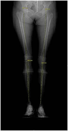 What Is A Leg Length Discrepancy