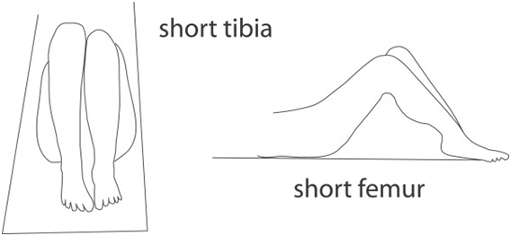 Assessment of leg length discrepancy