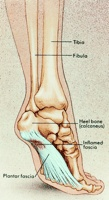 Helping Heel Pain