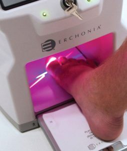 Laser Treatment on Toe Nail Fungus