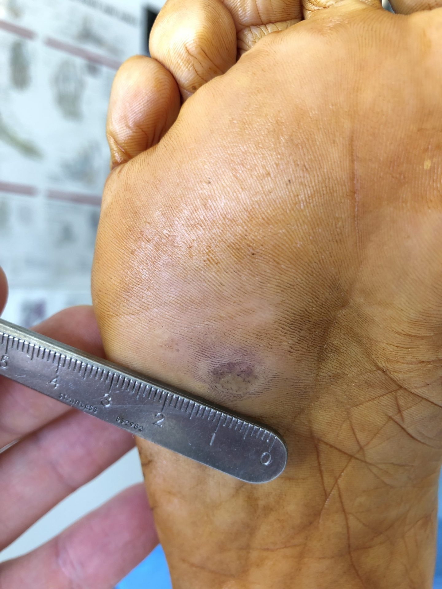 Plantar Warts (Verrucae) – How to finally get rid of those painful lumps on  the bottom of your feet!